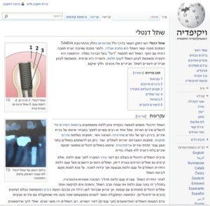 אתר שתל דנטלי בויקיפדיה