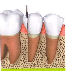 קירות העצם אוחזים היטב בשן