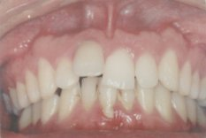 יישור שיניים לפני