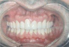 יישור שיניים אחרי