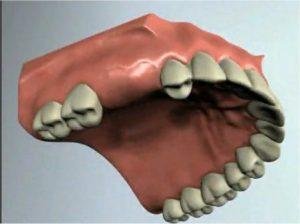 אזור מחוסר שיניים, דליל בעצם