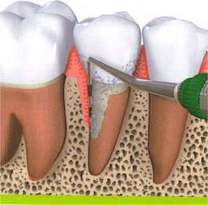 שן ללא תמיכה
