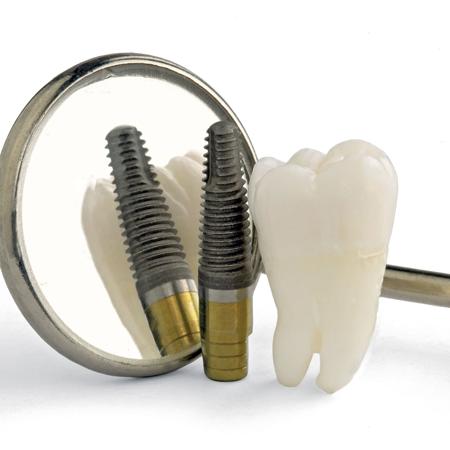 השתלות שיניים טוחנות