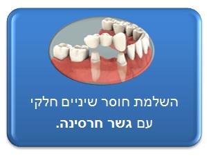 תיקון חוסר שיניים חלקי - עם גשר חרסינה