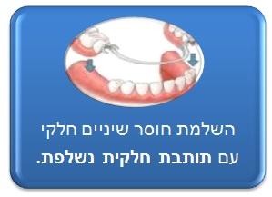 תיקון חוסר שיניים חלקי - תותבת חלקית נשלפת