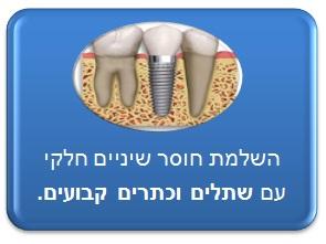 תיקון חוסר שיניים חלקי - שתלים וכתרים קבועים