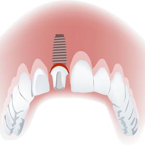 השתלות שיניים קידמיות