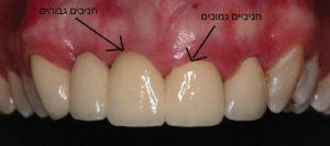 שיניים קידמיות
